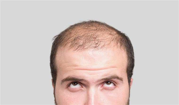 فیناستراید ریزش مو